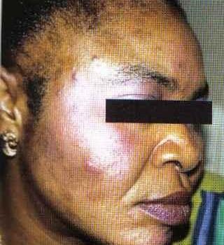 Le phénomène de la dépigmentation de la peau en Afrique noire